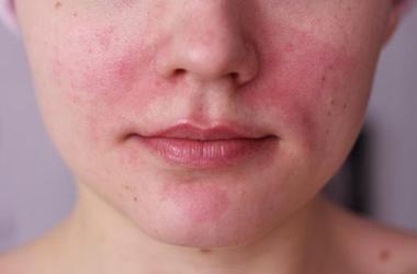 Холодовая аллергия или болезнь Рейно. Причины возникновения и методы лечения.